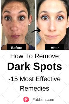Home Remedies For Face, Beauty Tips Home Remedy, Dark Spot Remedies, Natural Remedies, Beauty Hacks, Cream For Dark Spots, Dark Spots On Skin, Dark Patches On Face, Black Spots On Face