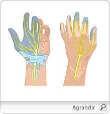 troubles_musculosquelettiques_main_poignet_pm Hand Surgery, Carpal Tunnel Syndrome, Cardiology, Hands