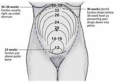 pregnancy and fundus measurement
