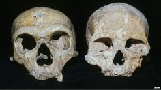 Neanderthal large eyes 'caused their demise' ~ The eyes have it: The Neanderthal skull (L) has larger eye sockets compared with a modern human skull (R). Consequently, the now extinct species used more of its brain to process visual information Aliens And Ufos, Ancient Aliens, Ancient History, Large Eyes, Big Eyes, Homo Habilis, Human Evolution, Mystery Of History, Human Skull