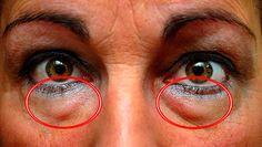 Con este tratamiento podrás reducir esos bultos y ojeras debajo de los ojos de forma efectiva. Compruébalo…