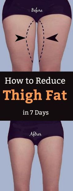 How to Lose Thigh Fat Fast in a Week at Home How To . How to Lose Thigh Fat Fast in a Week at Home How To Reduce Cellulite In Lose Thigh Fat Fast, Reduce Thigh Fat, How To Lose Weight Fast, How To Reduce Thighs, Lose Stomach Fat Fast, Burn Fat Fast, Loose Weight, Lose Back Fat, How To Reduce Fat