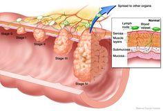 Carcinoma in situ e carcinoma invasivo. Entendendo as diferenças entre essas duas apresentações do câncer.