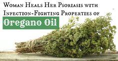 Woman Heals Her Psoriasis with Infection-Fighting Properties of Wild Oregano Oil - Heal Yourself DIY