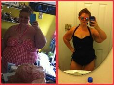 Progress from 2011 to 2012 after weight loss surgery