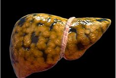 Do You Have a Fatty Liver? 90 Million Americans Do! The most common disease in America is something you probably never heard of, but it affects 90 million Americans and is a major risk factor for diabetes, heart attacks, and even cancer. Health And Wellbeing, Health And Nutrition, Liver Detox Symptoms, Liver Cleanse, Liver Disease, Fatty Liver, Diabetes Treatment, Health Articles, Nutrition Articles