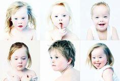 De Upside van Down is een fotoboek uit 2008 van Eva Snoijink waarin 101 kinderen met het syndroom van Down geportretteerd worden. De foto's zijn voorzien van begeleidende citaten van de ouders. Stichting de Upside van Down zet zich in voor een positiever beeld van Downsyndroom. Er is al zoveel aandacht voor de zorg die een kind met Downsyndroom met zich meebrengt dat wij besloten dat het tijd werd nu ook eens aandacht aan de andere kant te besteden. Want die andere kant bestaat