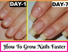 How To Make Nails Grow Faster With Natural Routes In A Week Trabeauli # household remedies # nail growth Make Nails Grow, Grow Long Nails, Grow Nails Faster, Nail Growth Faster, Nail Growth Tips, Soft Nails, Clean Nails, Us Nails, Hair And Nails