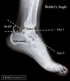 Bohlers Angle Ankle Xray Image 【 Note: No muscle attachment ob Talus 】