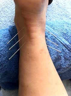 Acupuncture needles are extremely fine in diameter; about the thickness of two human hairs. To learn more visit DrBryanMD.com!