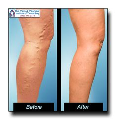 Tampa Varicose Veins Treatment Patient Photos showing beautiful results of laser vein treatment at our Tampa vein center, The Vein and Vascular Institute of Tampa Bay.  For a vein consultation, call (813) 377-2773 to schedule yours today.  https://www.tampavascularsurgeon.com/tampa-varicose-vein-removal-pictures/