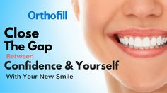 Close your teeth gap with Orthofill. The results are extremely amazing and you have the reason to be happy. Try it now! #howtocloseteethgap