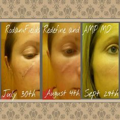 """Kristen Warren was a lover of the sun as many of us are, but sadly the sun did not love her back. Here's what she had to say... """"Why am I so adamant about sharing Rodan+Fields with all of you? Here it is! All of those days sun bathing finally caught up with me along with squamous cell carcinoma. From here on out I am dedicated to taking care of my skin and I have found the perfect fit in products!"""" This is only after 2 months! Clinically proven products with amazing results!"""