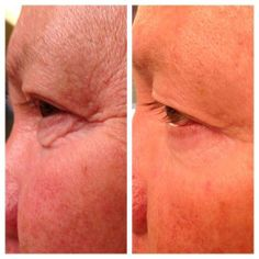 loose skin?? No problem for Nerium!! What are you waiting for?? Get started today!  www.annkiss.nerium.com