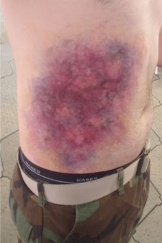 by 'Synapse FX' amazing abdomen bruise special fx gory halloween makeup