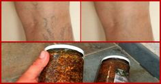 Rub Your Feet With THIS Oil And You'll Never Have Problems With Varicose Veins Again! (RECIPE)-Varicose veins are twisted and enlarged veins, usually found on legs. Excessive pressure on the veins, especially when standing and sitting, is the main
