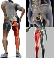 Fitness Websites, Health And Fitness Articles, Health Fitness, Brown Blonde Hair, Fitness Planner, Sciatica, Acupressure, Medicine, Hernia