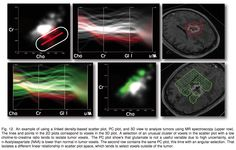 Matching Visual Saliency to Confidence in Plots of Uncertain Data