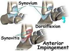 Physical Therapy Sterling VA | Dynamics Physical Therapy Group Inc. & Visit: #DynamicsPhysicalTherapy.com