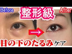 Beauty Tips With Honey, Health And Beauty Tips, Face Yoga Exercises, Under Eye Wrinkles, Facial Yoga, Face Massage, How To Make Hair, Excercise, Face And Body