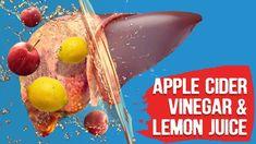 Apple Cider Vinegar and Lemon Water for the Liver - liver detox Natural Liver Detox, Best Liver Detox, Detox Cleanse Drink, Liver Detox Cleanse, Detox Drinks, Natural Healing, Apple Cider Vinegar Lemon, Apple Cider Vinegar Remedies, Lemon Water Cleanse