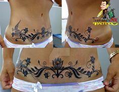 Cover-Up Abdominoplasty