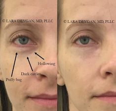 The spectrum of eye rejuvenation: from injections to surgery — Lara Devgan, MD, MPH, FACS Dermal Fillers, Lip Fillers, Under Eye Hollows, Under Eye Fillers, Tear Trough, Aesthetic Dermatology, Nose Surgery, Mommy Makeover, Eye Lift