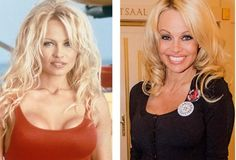 """Pamela Anderson would not have become Pamela Anderson without her many breast augmentation operations. First, the actress excited the consciousness of the fans with her outstanding forms in the series """"Rescuers Malibu"""", and then the fans just watched the changes: reduced the chest, increased the chest, decreased, increased ... This is a vicious circle."""