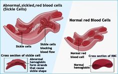 Anemia, lack of red blood cell production | Team Essence