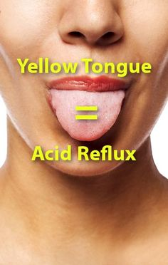 Dr Oz shared 60 Second Health Tests for acid reflux, arm bumps, sinus infection… Home Remedies For Acidity, Home Remedies For Heartburn, Heartburn Relief, Natural Remedies, Natural Treatments, Daily Health Tips, Health And Fitness Tips, Yellow Tongue, Gastric Problem