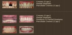 Crowns (Caps),Dental Implants and Porcelain Crowns (Caps) Porcelain Crowns, Restorative Dentistry, Family Dentistry, Cosmetic Dentistry, Dental Implants