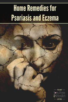 Psoriasis, Eczema, Home Remedies Home remedies that WORK! I use them myself for psoriasis outbreaks. Home Remedies for Psoriasis and Eczema www. Pune, Home Remedies For Psoriasis, Eczema Remedies, Natural Remedies, Psoriasis On Face, Eczema Psoriasis, Eczema Scalp, Sleep