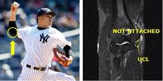 Baseball Injuries, Sport Casual, Surgery, Take That, York, Baseball Cards, Star, Sports, Hs Sports