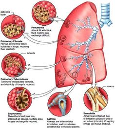 Restrictive Lung Disease Figure 1410 Common bronchial and pulmonary diseases Exposure to Family Nurse Practitioner, Respiratory Therapy, Respiratory System, Nursing School Notes, Medical Anatomy, Human Anatomy And Physiology, Nursing Tips, Lungs, Asthma
