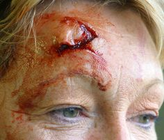 This is so good!   Head injury made with gelatine, pros-aide, sealer, skin illustrator, wound filler and liquid blood.