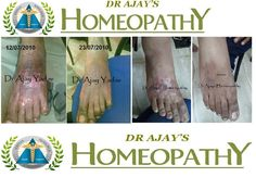 why homeopathy work Best In skin Disease Here is the answer #healthcare #health #lifestyle #healthtips #Healing #Homeopathy #homeopatia #Skin #BeautyBlogger #Mumbai #healthblog #lifestyle #travel #healthblogger #relationship #dermatology #skin