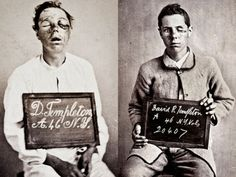 Injured Civil War soldier, before and after treatment.
