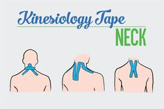 Kinesiology Tape for Neck and Upper Back Pain