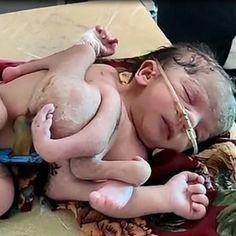 Kembar ketiga tidak terbentuk dengan baik sebaliknya melekat pada bayi perempuan itu.  #sinarharian #kembar #India #perempuan Motion Video, Wrestling, News, Lucha Libre