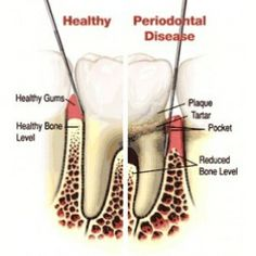 Causes And Treatment Options Of Gum Disease - Tips To Prevent Gum Disease | Home Remedies, Natural Remedy