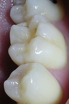 healing a cavity naturally without a dentist!