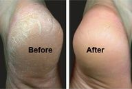 heeSoften and Get Rid of Tough Calluses: blend two tablespoons of baking soda in a basin of warm water and add a few drops of lavender oil. After a nice long soak, scrub them away using three parts baking soda, one part water, and one part brown sugar. Follow with an application of a rich moisturizer and a warm towel foot wrap. Let sit for 5-10 minutes.""