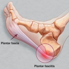 Natural Cures For Plantar Fasciitis