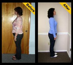HCG Before and After Photos of Trish: Down 75 lbs with the HCG Diet! www.poundsandinchesaway.com