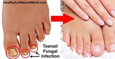 Say goodbye to toenail fungus - 2 Ingredient natural remedy which is fast and easy to make!