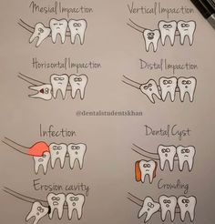 Dapper Dental Bridge Vs Implant - Another! Dental Assistant Study, Dental Hygiene Student, Dental Humor, Dental Facts, Rda Dental, Dentist Jokes, Dental World, Dental Life, Dental Health