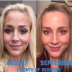 Covering your skin with makeup is not the answer! Today I'm going to clean out my old makeup and failed beauty products and calculate how much money I WASTED on products before using Rodan Fields. This before and after is 30 days of using R F. Imagine what your skin could look like in a months time! With a 60 day money back guarantee you can't lose. Message me today for a consult! I wish my philosophy line of skin care had a money back guarantee. I used it for months with no results. What a…