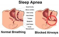 SLEEP APNEA HOME REMEDIES- for Jeff?
