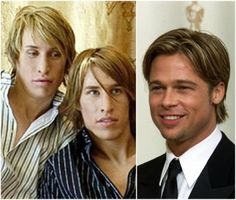 Twins spend $20,000 on cosmetic surgery to look like Brad Pitt (photos)