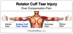 the supraspinatus muscle and tendon assists with raising